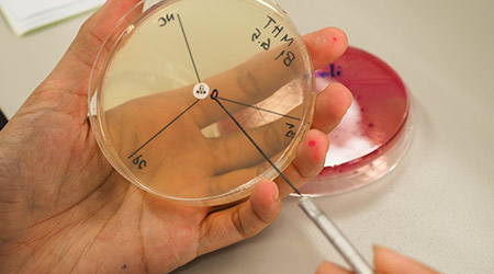 """Streaking the bacteria in carbapenemase producing testing """"Modified Hodge Test"""" in close up"""