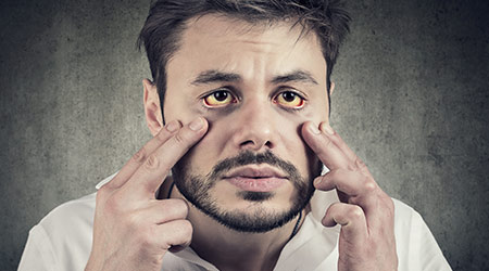 Sick man looking in a mirror has yellowish eyes as sign of possible liver infection or other disease.