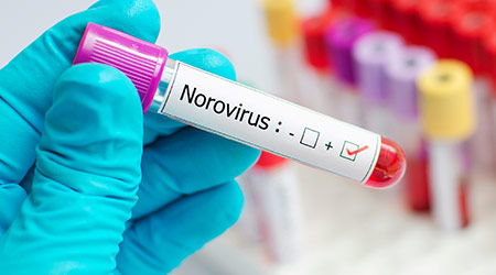 Blood sample positive with Norovirus