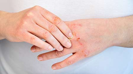 very dry hands that are cracked and show blood